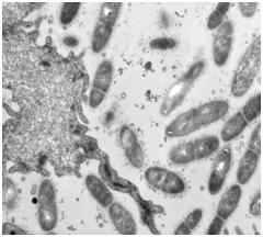 рамположительные палочки и клетка плоского эпителия