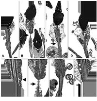 Олигоспермия – снижение объема эякулята менее