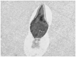 Электоронно-микроскопическое исследование сперматозоидов (ЭМИС)
