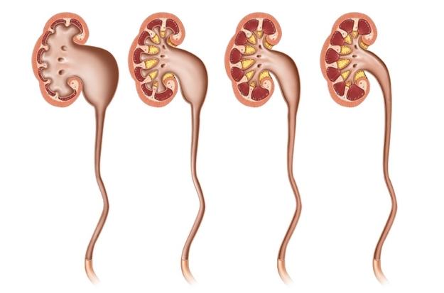 Гидронефроз и беременность