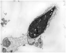 анализ спермы ЭМИС