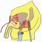 Лечение простатита, везикулита, калликулита, уретрита, преждевременного семяизвержения