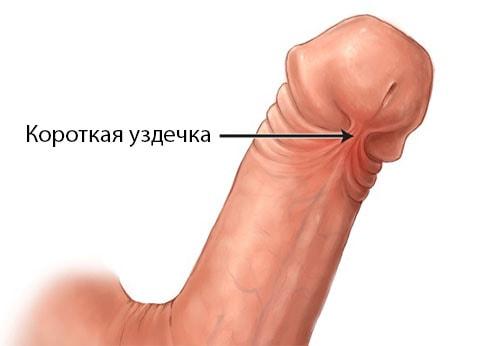 операция при короткой уздечки члена