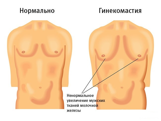 Увеличение размера молочных желез у мужчин