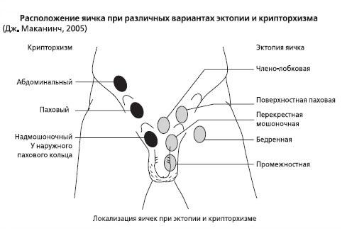 крипторхизм лечение в москве