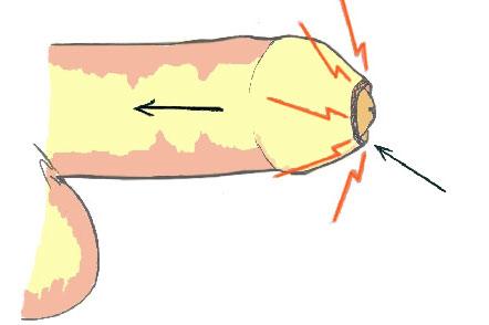 Закрыта головка пениса
