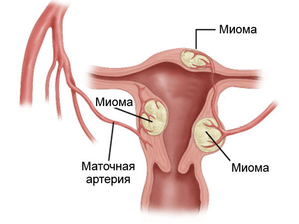 Миома матки – это доброкачественная опухоль