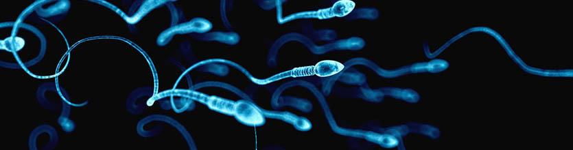 специфические аномалии сперматозоидов