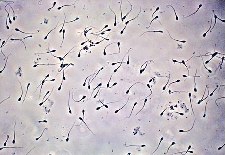 Расшифровка анализа спермограммы